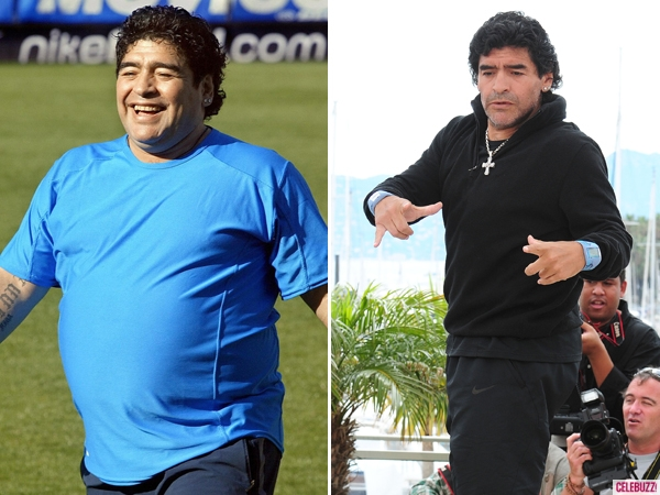 diego-maradona-weight-loss-surgery