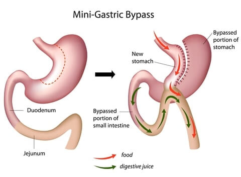 wp content uploads 2016 07 Mini gastric bypass.jpg