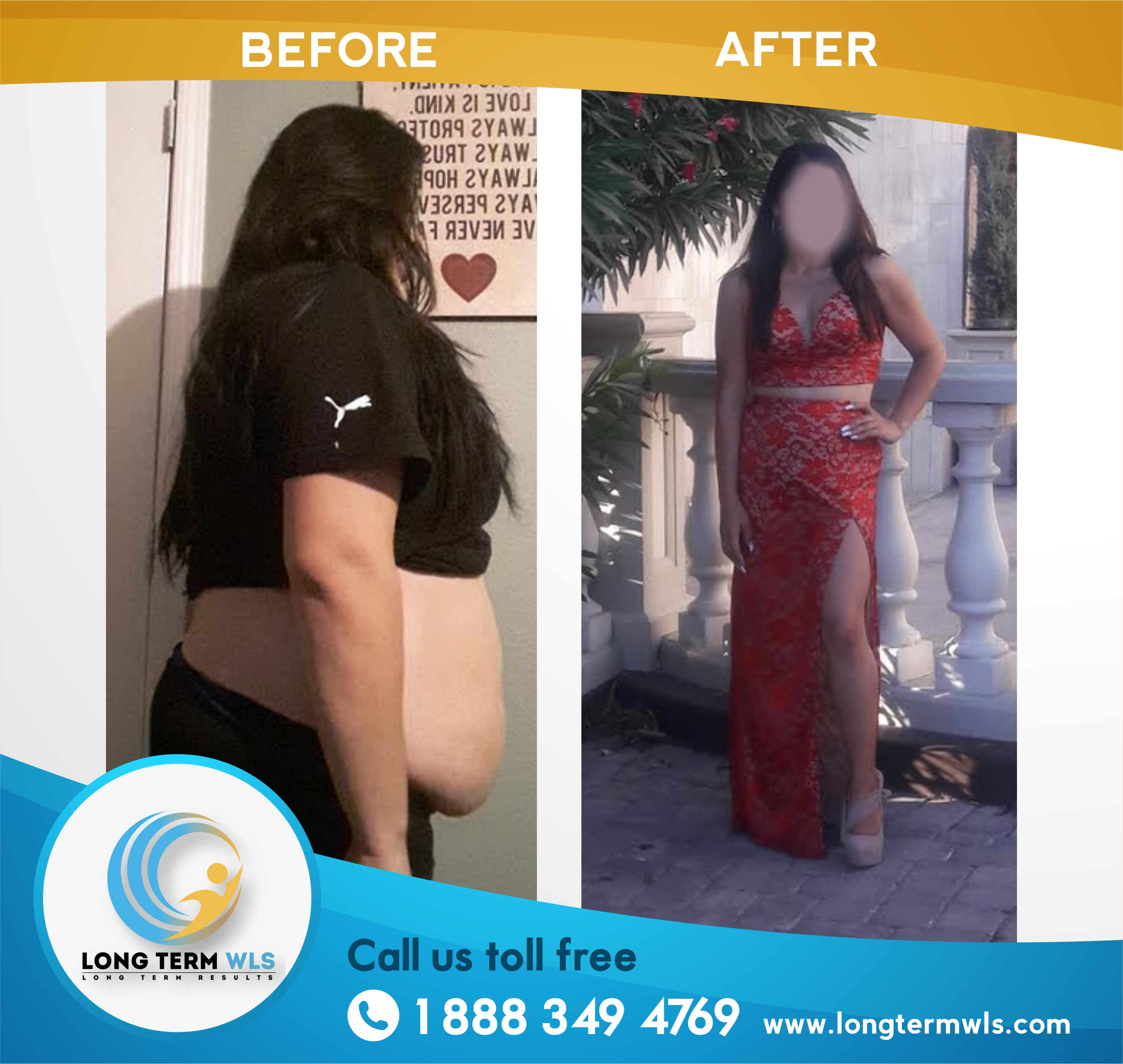 Top Information For 2017 On Establishing Critical Details Of Weightlifting: Gastric Sleeve Surgery In Tijuana Mexico