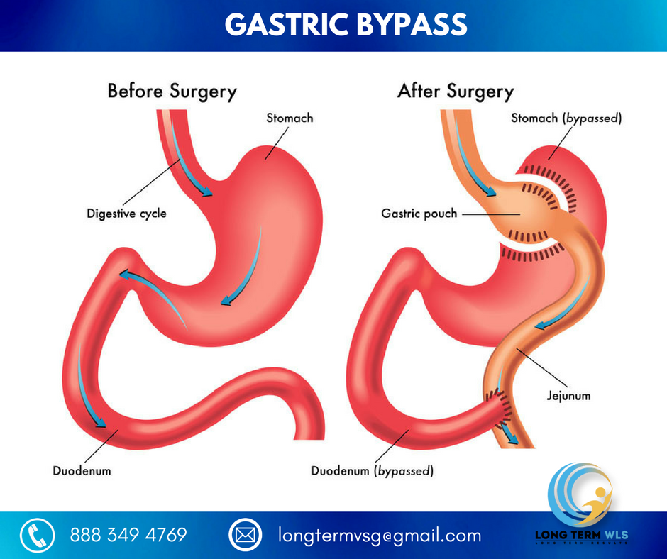 wp content uploads 2018 02 Gastric Bypass.png