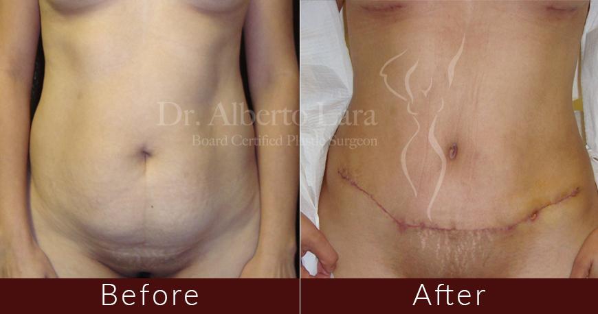 es cirujano plastico dr alberto lara abdominoplasty1 2