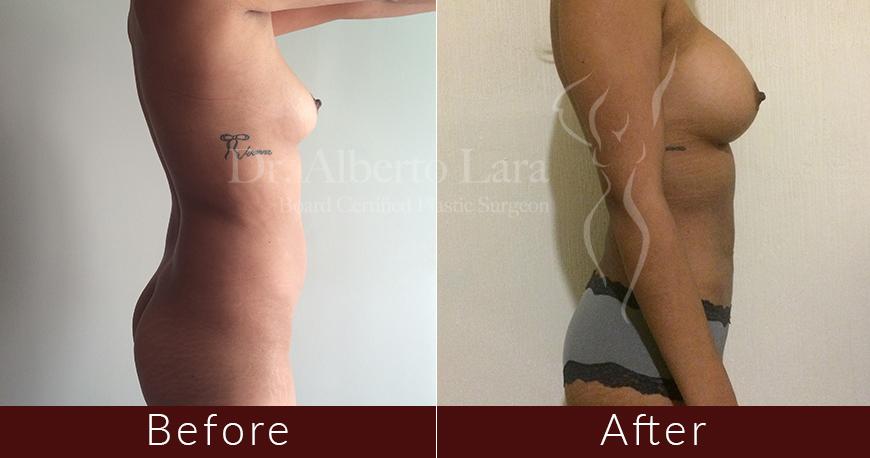 es cirujano plastico dr alberto lara breast augmentation and liposuction1 2