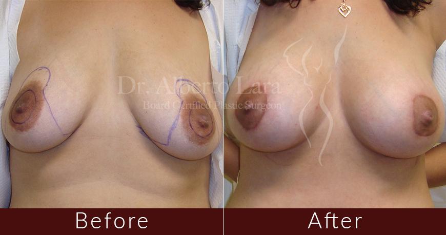 es cirujano plastico dr alberto lara breast augmentation7 2