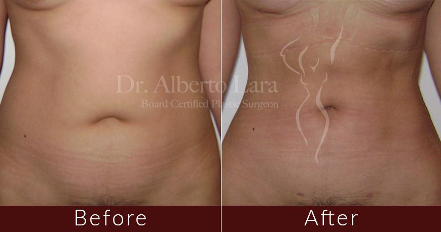 es cirujano plastico dr alberto lara liposuction2 2