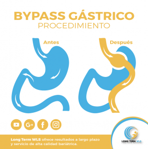 wp content uploads 2018 09 Bypass Gástrico 1 297x300.png