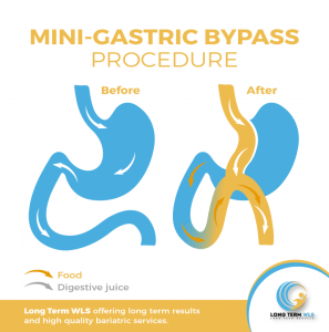 wp content uploads 2018 09 Mini Gastric Bypass 1 297x300.png