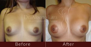wp content uploads 2018 01 breast augmentation2 300x158.jpg