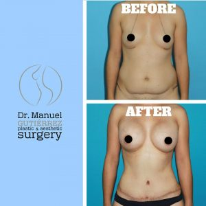 wp content uploads 2018 02 Tummy Tuck Breast Augmentation with Lift and BBL 300x300.jpg