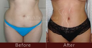 wp content uploads 2018 02 abdominoplasty3 300x158.jpg