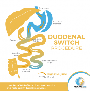 wp content uploads 2018 09 Duodenal Switch 297x300.png